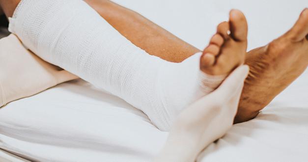 ¡Rómpete una pierna!: El sufrimiento y el gozo cristiano